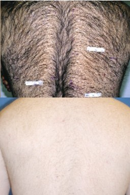Calgary Laser Hair Removal